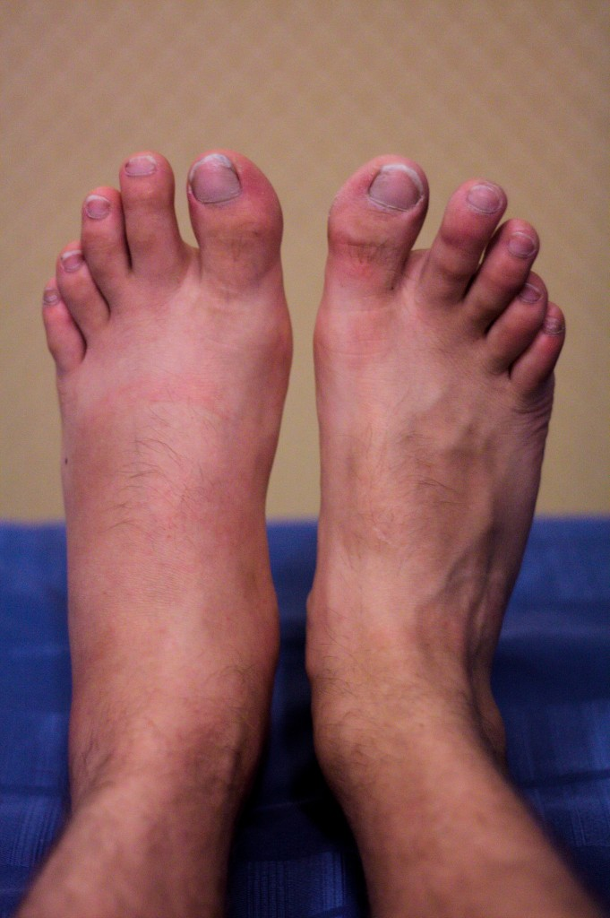 My feet after the first day in Rome