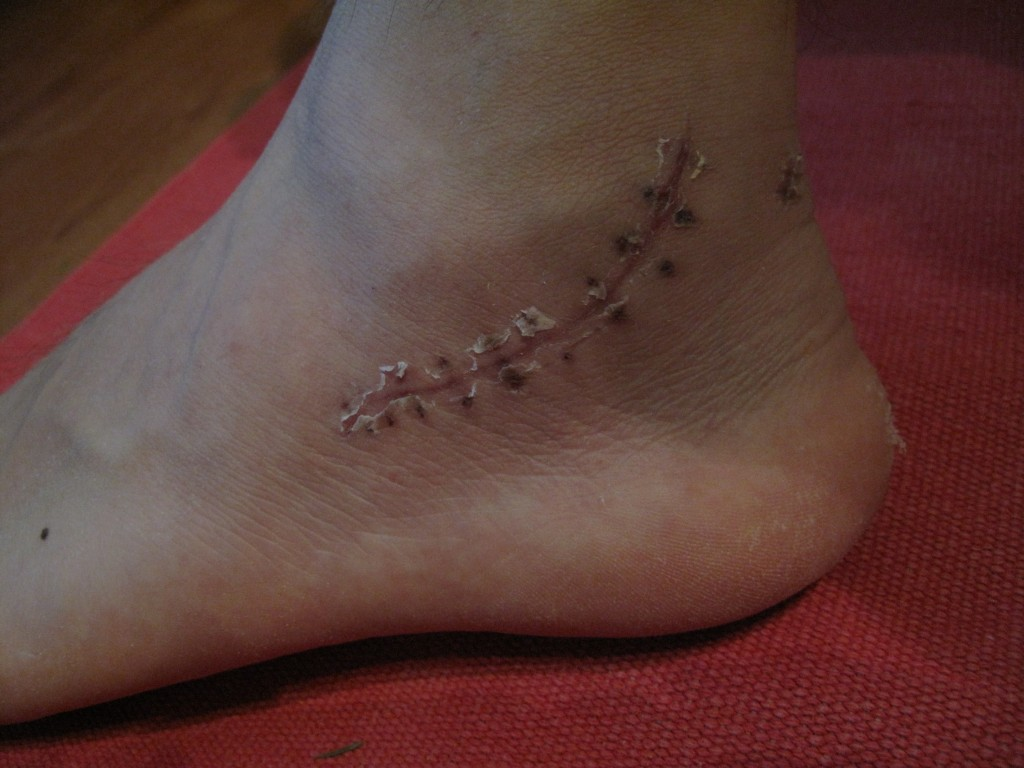 Four weeks after the operation