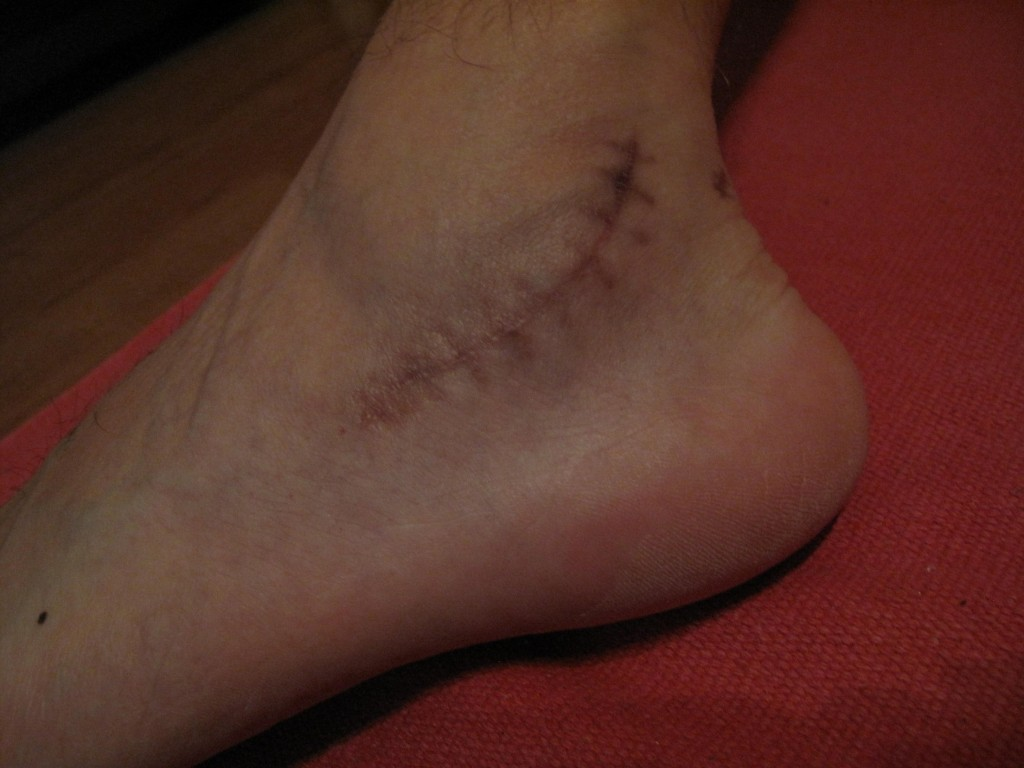Nine weeks after the operation