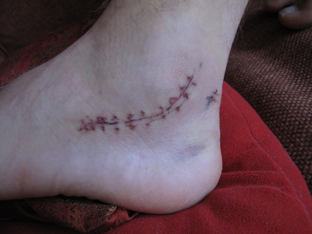 Three weeks after the operation